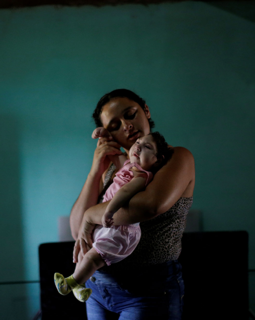 a mother holds a baby with microcephaly in brazil